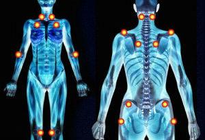 fibromyalgie-douleurs-beattitudes